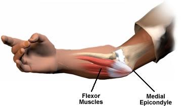 golfers elbow cure medial epicondylitis
