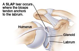 SLAP Lesion Labral Labrum Tear