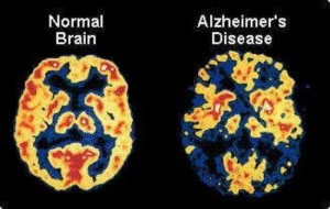 The Cure for Alzheimers Disease